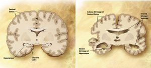 Alzheimer's_disease_brain_comparison